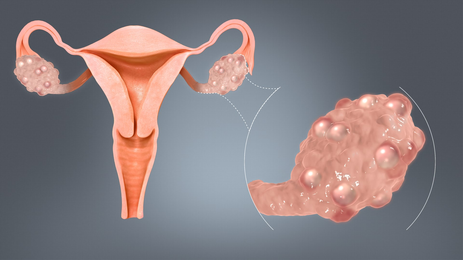 Polycystic Ovary Syndrome PCOS Causes Symptoms and Medication