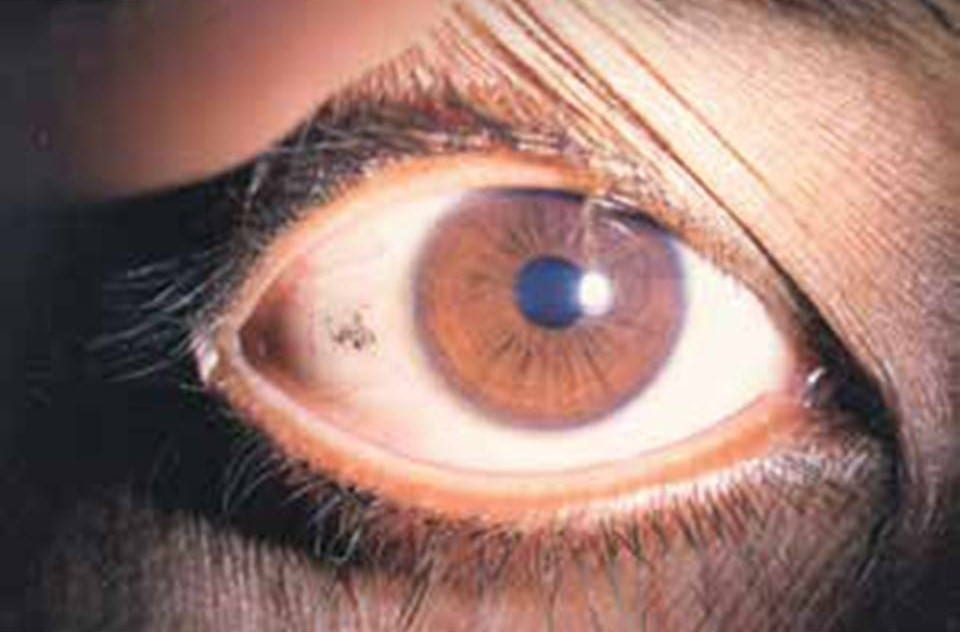Signs and Symptoms of Vitamin A Deficiency on Health
