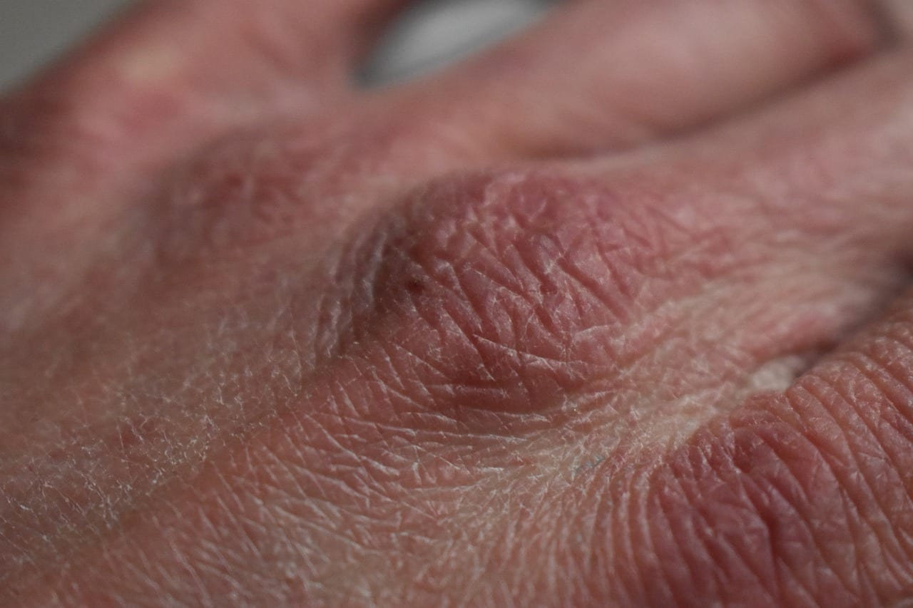 Treatment of Dry Skin Easy Causes and Remedies