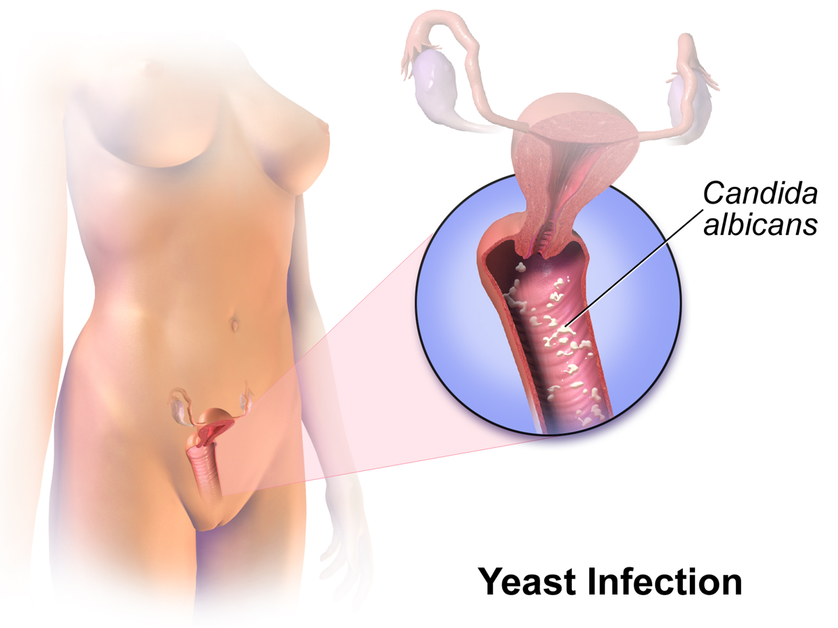 Yeast Infections Symptoms Causes and Treatment